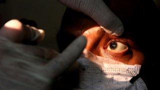 Hızlı yayılan kara mantar hastalığının tedavisi: Bir gözünü çıkartmak!
