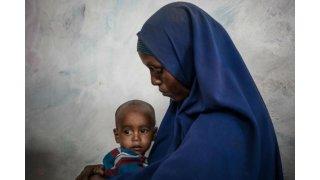UNICEF'ten açıklama: Yemende 400 bin çocuk yetersiz beslenmeden dolayı her an ölebilir