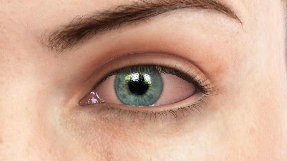 Göz batması neden olur, nasıl geçer? Göz batmasına ne iyi gelir?
