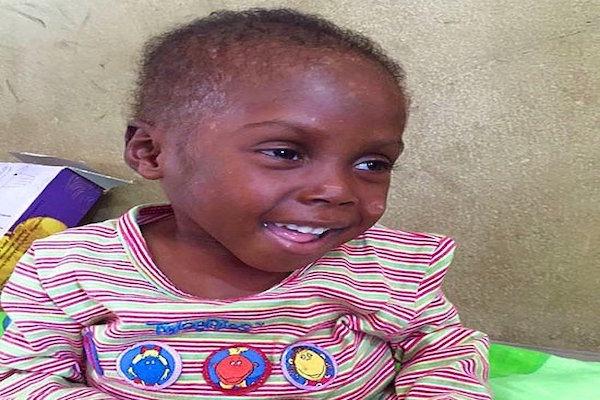 Cadı Diye Sokağa Atılan Henüz 2 Yaşındaki Umut'un Umut Dolu Hikayesi